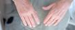 mani di persona anziana su sfondo azzurro