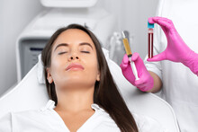 Beautician Will Do PRP Therapy...