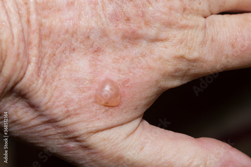 Raised blister caused by cryotherapy to remove solar keratosis lesion Canvas Print