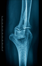 X-ray Of An Human Elbow