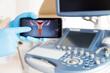 Ręka lekarza w niebieskiej rękawiczce pokazuje na monitorze telefonu ilustrację szyjki macicy.
