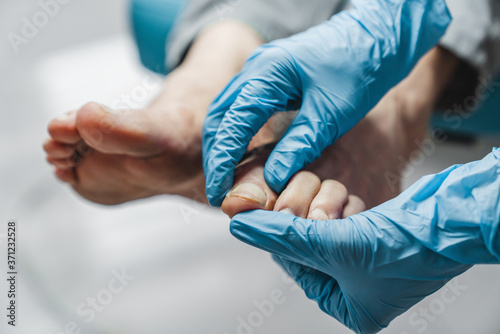 Podiatrist treating feet during procedure Fototapeta