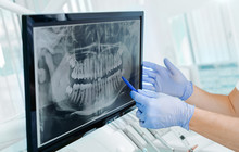 Hands Doctor Dentist In Gloves Show The Teeth On X-ray On Digital Screen In Dental Clinic On Light Background With Medical Equipment. Smile Healthy Teeth Concept, Close Up