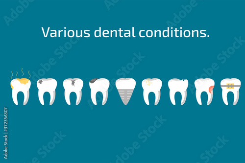 Fotografía Various teeth conditions healthy, caries and dental implant.