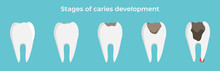 Stages Of Caries Development, ...
