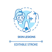Skin Lesions Concept Icon. Skin Patches And Birthmarks. Dermatologist. Abnormal Colored Epidermis Idea Thin Line Illustration. Vector Isolated Outline RGB Color Drawing. Editable Stroke