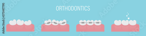 Photo The concept of teeth alignment with braces