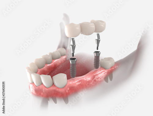 Fotografie, Obraz 3d illustration of gums with dental bridge, supported by two implants