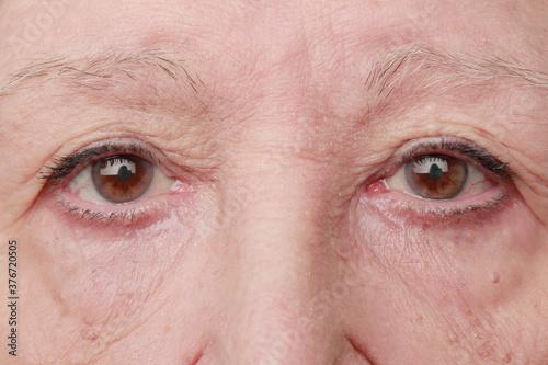 Fotografie, Obraz mirada triste de mujer mayor mirando a cámara con verrugas pequeñas en la piel y