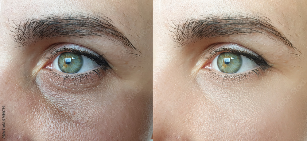 Fototapeta woman face wrinkles before and after treatment