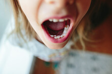 Closeup Of Little Kid With Extra Teeth In Mouth