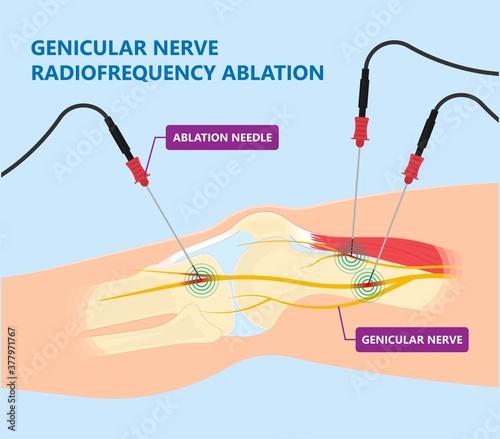 Fotomural RFA low arm leg hip pain back neck knee pars bone nerve treat joint spine block