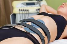 Myostimulation Electrodes Are ...