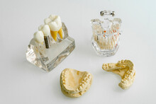 Dentures With Human Jaw Bone On Table