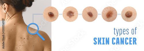Obraz Young woman with different types of moles. Concept of skin cancer - fototapety do salonu