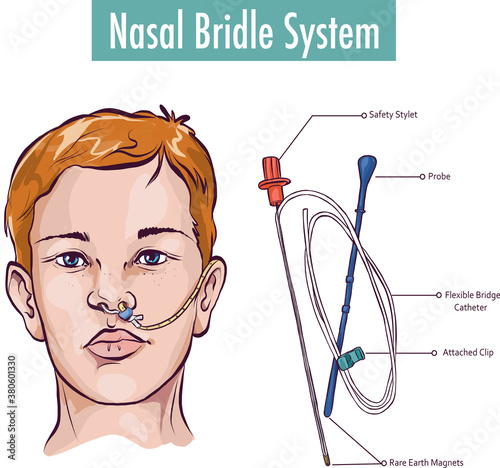 A nasal bridle attaching a nasogastric tube to the nasal septum to prevent accid Canvas Print
