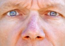 Man With Peeling Sunburned Nose