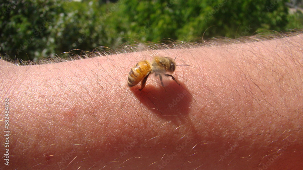 Fototapeta bee : apis mellifera treatment by honey bee sting closeup honey bee stinging a hand close up bee worker insects, insect, animal, wildlife, wild nature, forest, woods, garden beauty of pollination