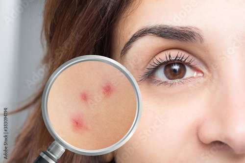 Portrait of girl with demodicosis Fototapet