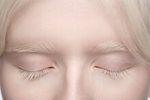 Eyes Closed. Close Up Portrait Of Beautiful Albino Woman Isolated On White Studio Background. Beauty, Fashion, Skincare, Cosmetics Concept. Copyspace. Well-kept Skin, Fresh Look. Inclusion And