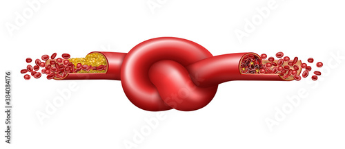 Vein with cholesterol and blood clot tied in a knot. Vector illustration