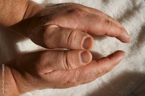 Fototapeta akromegalia obraz