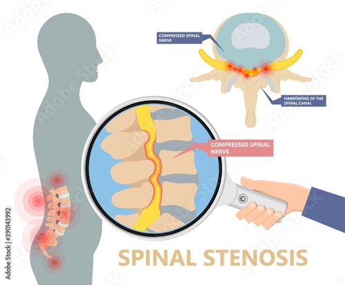 Valokuvatapetti Spinal stenosis a narrowing of the spaces of the spine that causes lower back pa