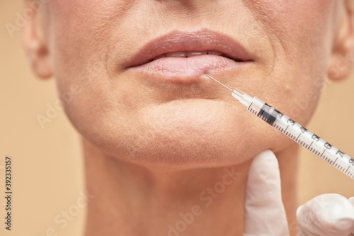 Canvastavla Mature woman doing cosmetic injection for lips