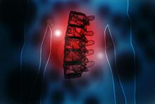 3d Illustration Spinal Fixatio...