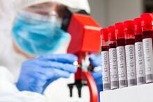 Medical Technologist Or Lab Scientist Microscope Examining Coronavirus Patient Test Tube Blood Sample Specimen, Deadly COVID-19 Respiratory Virus Disease Global Worldwide Pandemic Outbreak Crisis