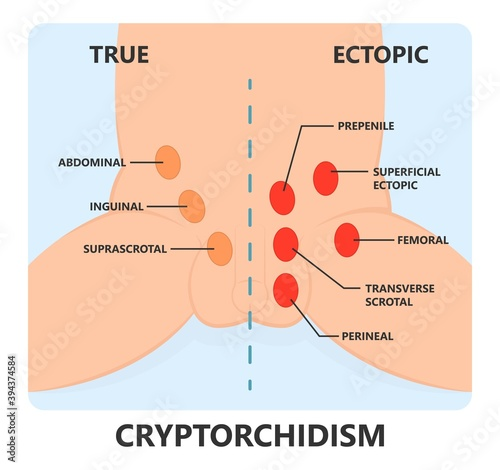 Obraz na plátně Undescended testicle cryptorchidism testicle that hasn't moved into its proper p