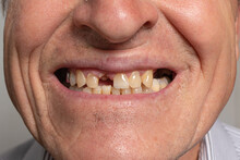 The Toothless Smile Of An Old European Man On A Gray Background. Dentistry For Pensioners, Happy Old Age, Dentist Installing Dentures