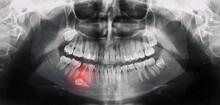 Orthopantomography, OPG X-ray DR Digital Wisdom Teeth