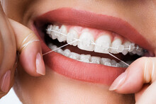 Female Cleaning Dental Brackets In Mouth