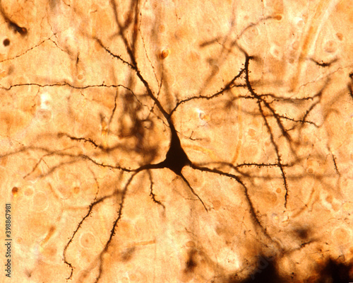 Tableau sur Toile Pyramidal cell. Cerebral cortex