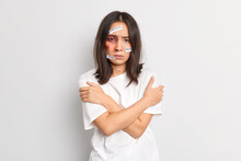 Beaten Up Woman Stands In Defensive Pose Embraces Herself Becomes Victim Of Violence Has Bruise Under Eye Asks To Stop Sexual Abuse Being Abused And Unprotected Stands Indoor. Domestic Cruelty