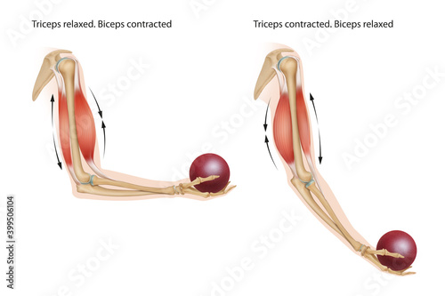 Cuadros en Lienzo An example of an anatomical and physical movement process where the biceps are contracted and the triceps are relaxed, the biceps is relaxed and the triceps are contracted