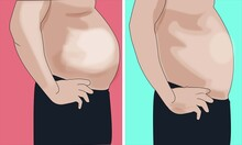 Weight  Loss Man Belly Body Before After Abdomen Slimming Slim Fat Overweight Problem Vector Illustration Obesity Muscle Diet