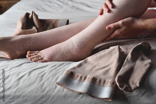 Woman putting on compression stockings on swollen feet affected by lymphedema co Fototapeta