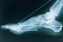 X-ray Of The Foot. Fracture Of The Bones Of The Foot. Bone Fixation Pins