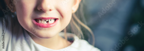 Fotografia, Obraz image of a little beautiful girl who lost a tooth