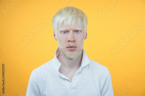 Obraz na plátně albinism albino man in studio dressed t-shirt isolated on a yellow background