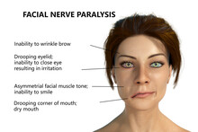 Facial Nerve Paralysis, Bell's Palsy