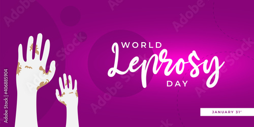 Fotografie, Obraz Banner vector of International leprosy day greeting card design