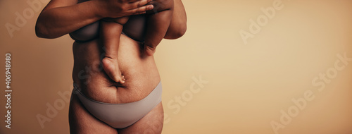 Fotografie, Obraz Postpartum belly with stretch marks