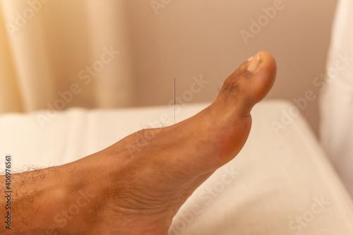 Fotografering Detalhe de agulha de acupuntura em pé de paciente.