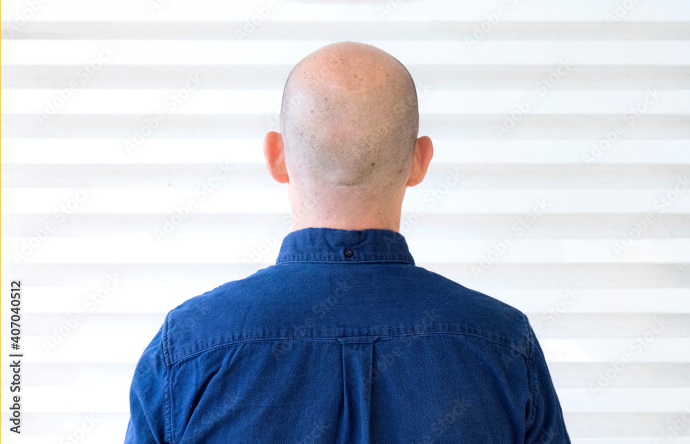 Fototapeta Person without hair on his back with blue shirt and white background