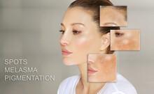 Dark Spots, Freckles,hyperpigmentation(melasma Or Chloasma),concept - Skin Lightening, Skin Whitening, Fruit Acids,AHA, Skin Brightening.