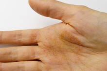 Female Palm With Skin Disease, Dermatitis On The Palm.