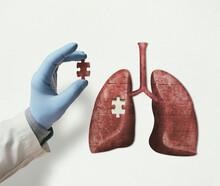 Puzzle With Illustration Of Human Lungs And Doctor Hand With The Missing Piece Of Puzzle. Lungs Treatment Concept.